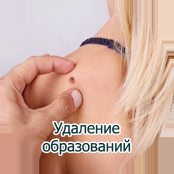 Удаление образований с кожи Харьков