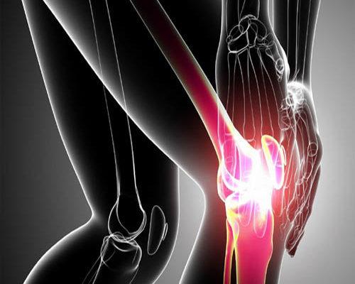 Боль в коленном суставе, Олимпийский