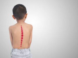 Сколіоз у дитини. Основні ознаки